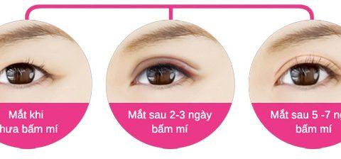 Chuyên gia giải đáp 10 câu hỏi hay gặp nhất về dịch vụ bấm mí mắt
