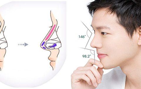 Nâng mũi có để lại sẹo không? Hỏi – Đáp cùng chuyên gia