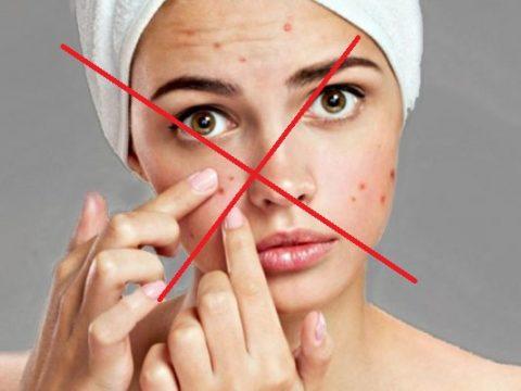 7 quy tắc vàng nhất định phải biết khi điều trị mụn