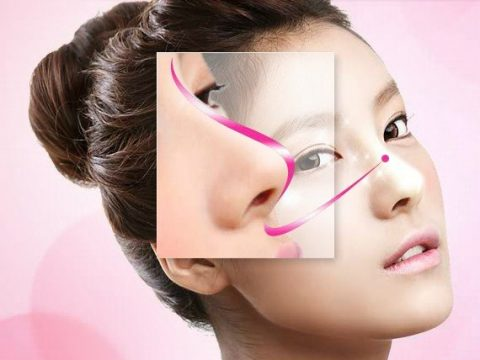 Nâng mũi sụn tự thân và nhân tạo cái nào tốt hơn, đẹp tự nhiên hơn và giữ được vĩnh viễn?
