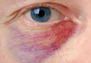 Cách làm tan máu bầm ở mí mắt 1