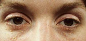 Mụn thịt mọc quanh mắt