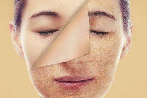 Cách tẩy tế bào chết đúng nhất giúp ngăn ngừa mụn cho da