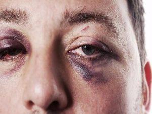 cách làm tan máu bầm ở mí mắt 2