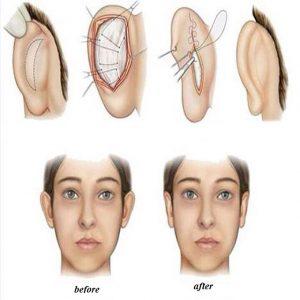 Tiểu phẫu chữa tai vểnh