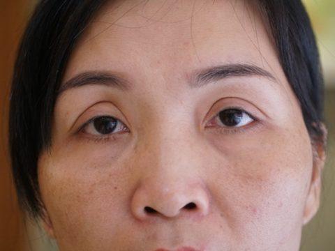 Cắt mí mắt không đều – Cách khắc phục và kết quả sau cùng