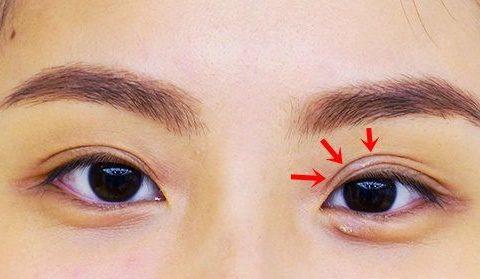 Mắt ba mí – Cách khắc phục và kết quả nhận được