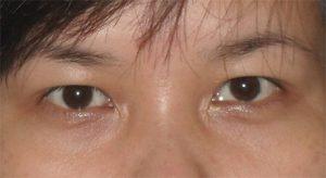 thuốc chữa sụp mí mắt 1