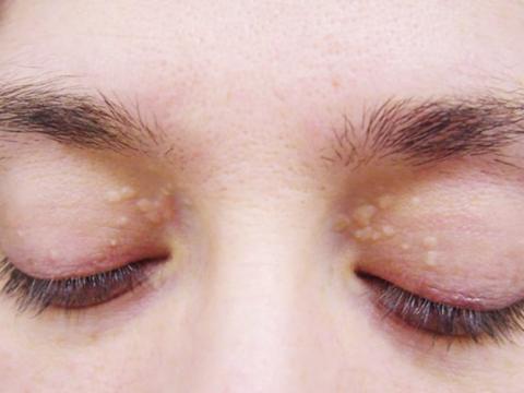 Cách chữa mụn thịt ở mí mắt