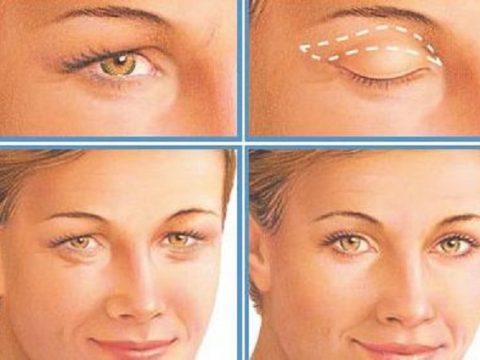 Tổng hợp các cách nâng mí mắt bị sụp tốt nhất