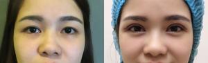 thuốc chữa sụp mí mắt 4