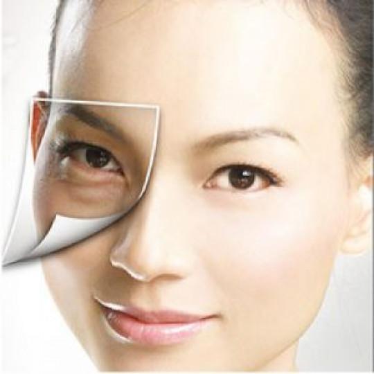 phẫu thuật lấy mỡ mí mắt và cắt da thừa 3