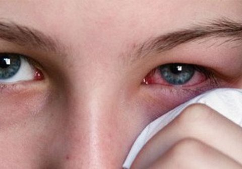 Mẹo chữa đau mắt hàn – Thợ lành nghề chia sẻ