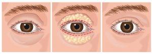 phẫu thuật lấy mỡ mí mắt và cắt da thừa 1