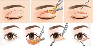 phẫu thuật lấy mỡ mí mắt và cắt da thừa 2