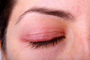 cách chữa sưng mí mắt trên 2