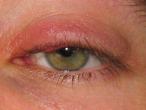 Cách chữa sưng mí mắt trên thành công nhất