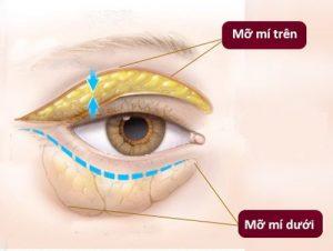 cách làm tan mỡ mí mắt trên 1