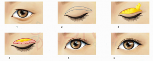 cách làm tan mỡ mí mắt trên 5
