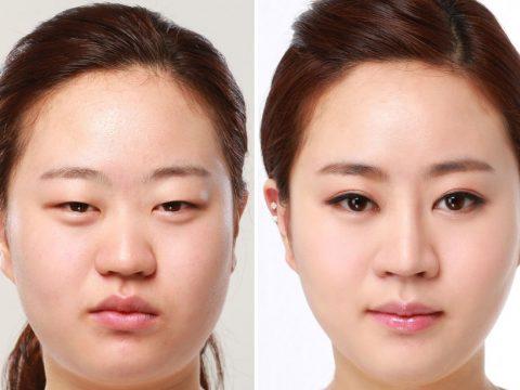 Cách làm tan mỡ mí mắt trên tốt nhất nên dùng
