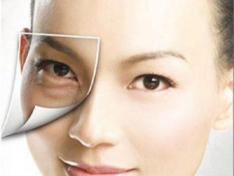 Sưng bọng mắt dưới – Biểu hiện và cách điều trị