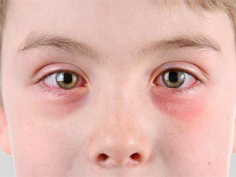 Mắt bị sưng mí dưới – Nguyên nhân và cách điều trị tốt nhất