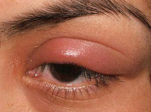 Cách chữa sưng mí mắt trên 1