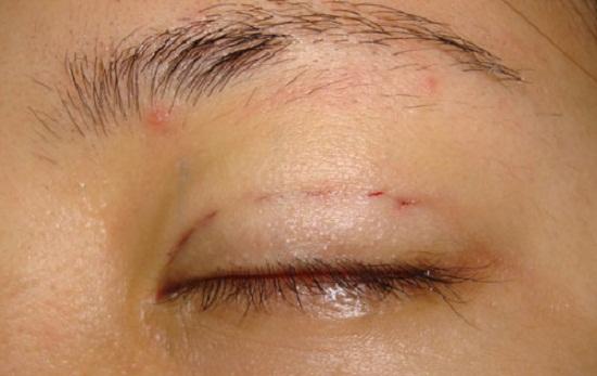 tác hại của việc nhấn mí mắt 1