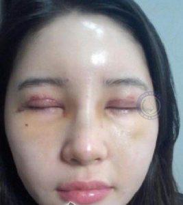 tác hại của việc nhấn mí mắt 2