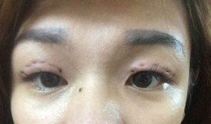 tác hại của việc nhấn mí mắt 3