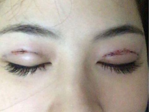 [Tìm hiểu] tác hại của việc nhấn mí mắt