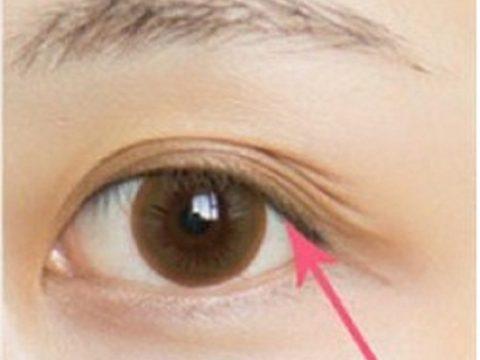 Thông tin và cách điều trị: Mí mắt có nhiều nếp gấp