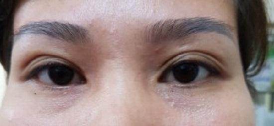 mí mắt có nhiều nếp gấp 3