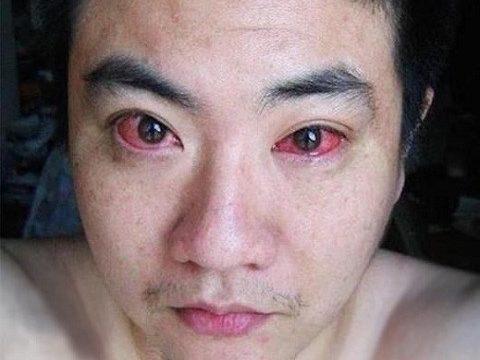 Mô phỏng quá trình chữamí mắt bị ngứa và sưng