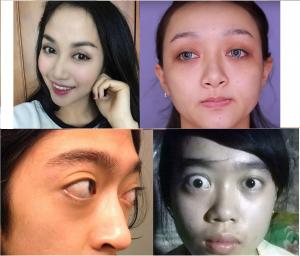 mắt lồi bẩm sinh 3