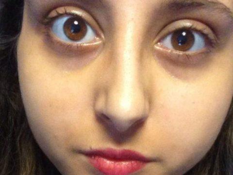 Mắt lồi có chữa được không?