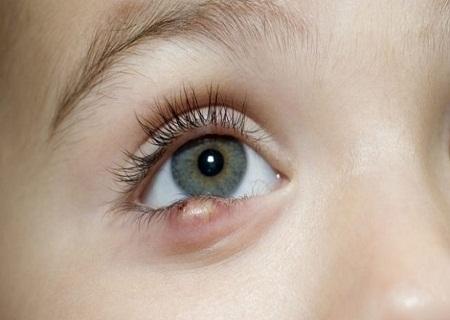 Nổi hạt trắng ở mí mắt dưới là bệnh gì? Cách phòng bệnh