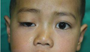 trẻ sơ sinh mắt to mắt nhỏ 3