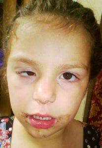 trẻ sơ sinh mắt to mắt nhỏ 4