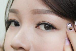 viêm mí mắt trên 2