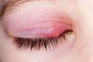 viêm mí mắt trên 3