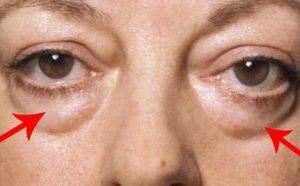 có nên phẫu thuật cắt bọng mắt 2