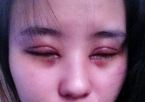 cách trị thâm quầng mắt nhanh và hiệu quả 10