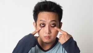 cách trị thâm quầng mắt nhanh và hiệu quả 6