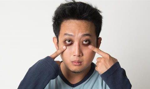 Cách trị thâm quầng mắt nhanh và hiệu quả