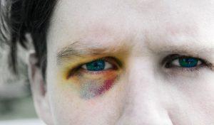 cách trị thâm quầng mắt nhanh và hiệu quả 2