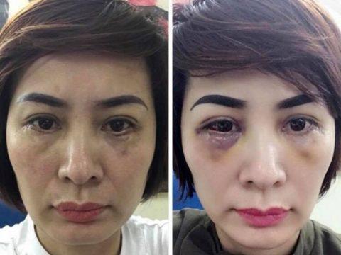 Chữa mí mắt dưới bị sưng và đau sau phẫu thuật cắt mí dưới