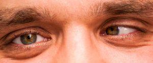 mắt lé là gì 1