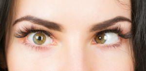 mắt lé là gì 2