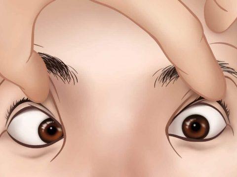 Mắt lé là gì? Tại sao lé? Điều trị mắt lé